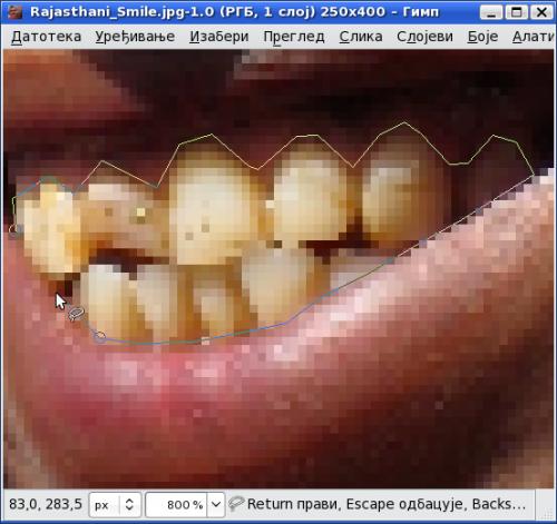 Селектовање површине зуба алатком за слободан избор