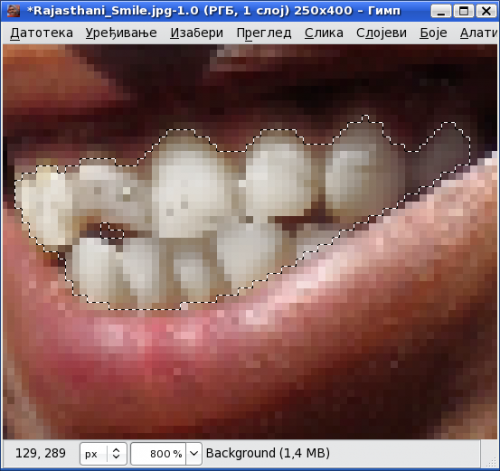 Избељени зуби након корекције светлине и засићености